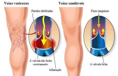 tratamento-caseiro-varizes-500x325