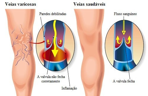 treatment-home-varices-500x325
