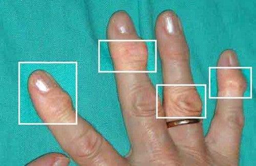 Remédios naturais para tratar a artrite