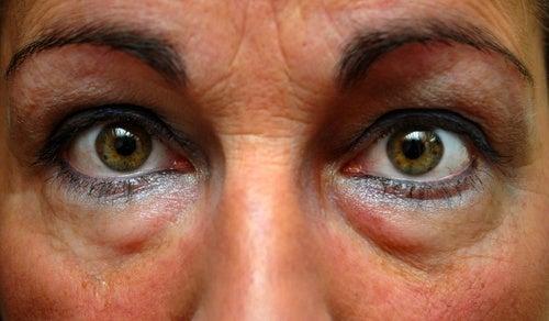 Como tratar as bolsas nos olhos?