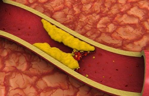 Mais de 10 sucos para reduzir o colesterol