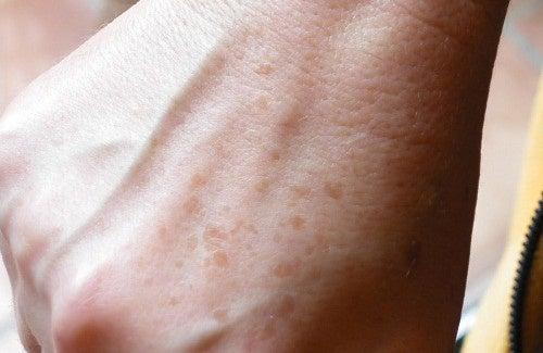 Como disfarçar ou eliminar as manchas e as sardas nas mãos?
