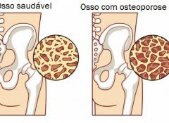 Como controlar a osteoporose durante a menopausa