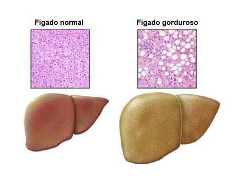 fígado-gorduroso
