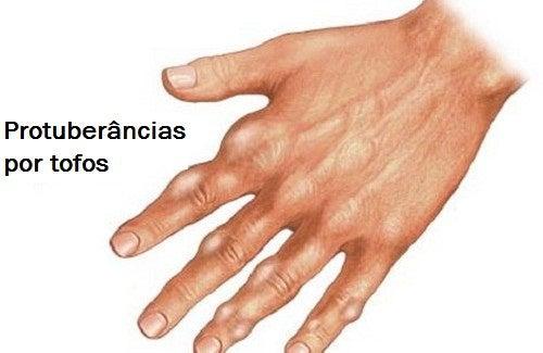 menus para personas con acido urico alto alimentos permitidos en el tratamiento de la gota como bajar el acido urico del cuerpo