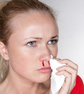 Mulher com sangramento nasal
