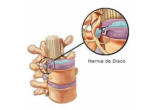 Sintomas de uma hérnia de disco