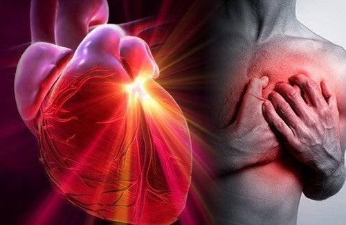 Como reconhecer as diferenças entre um infarto, uma parada cardíaca e um ataque cardíaco
