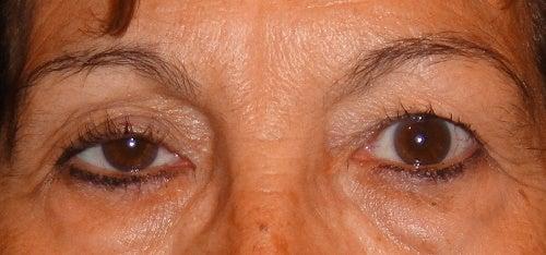Mulher que tem problemas nos olhos