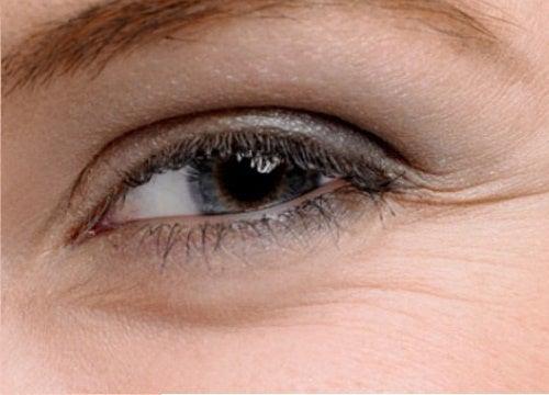 Remédios para as bolsas na aérea dos olhos e os pés de galinha