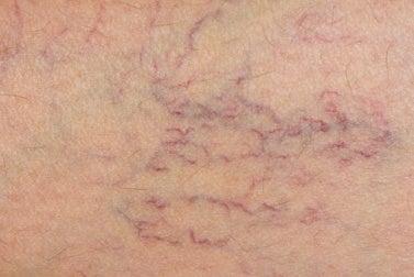 Tratamento natural para prevenir as varizes
