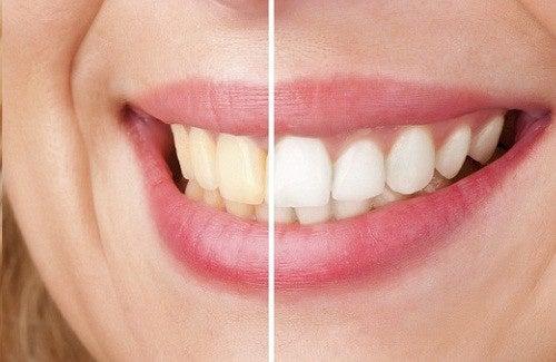 Dicas naturais para cuidar mais dos dentes