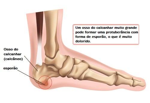 Esporão geralmente é a origem de dor no calcanhar