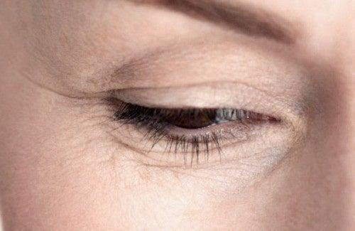 Como atenuar as rugas debaixo dos olhos?