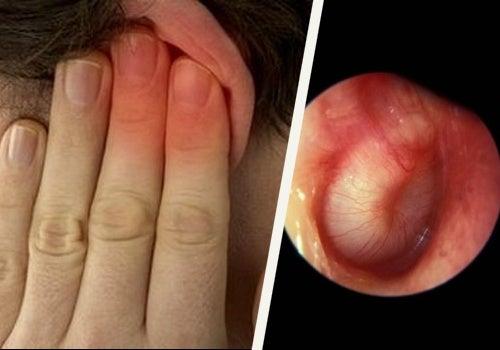 Como tratar as infecções no ouvido?