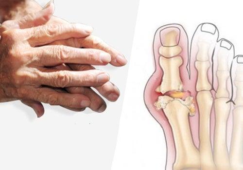 Recomendações para tratar a artrite