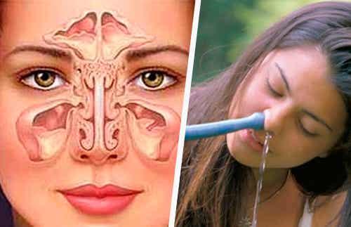 Método simples e natural para tratar a sinusite