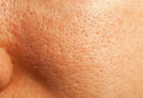 Como fechar os poros do rosto de forma natural
