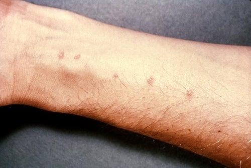 Tratamentos-caseiros-para-a-dermatite-alérgica-de-contato