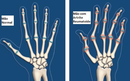 Óleo de rícino ajuda a previnir a artrite