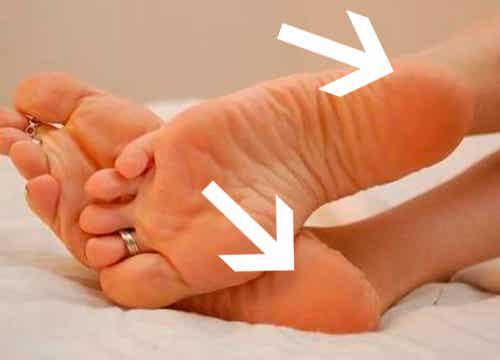 O que causa dores no calcanhar?