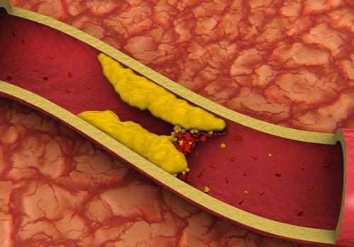 Como controlar o colesterol alto naturalmente?