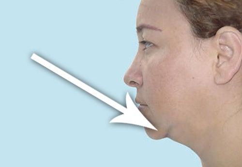 4 dicas para queimar as gorduras da papada