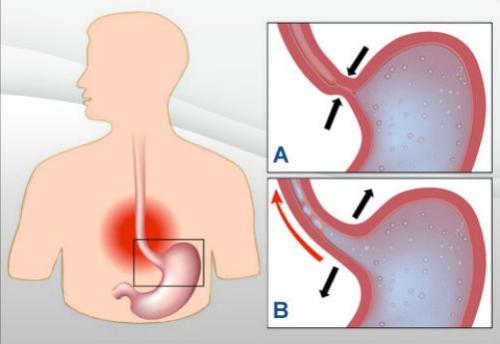 7 remédios naturais para tratar a acidez e o refluxo gástrico