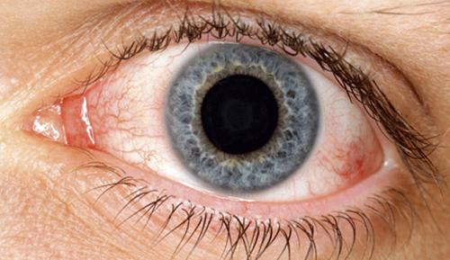 Remédios naturais para o ressecamento dos olhos