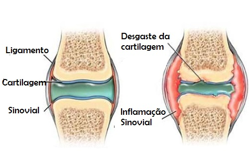 Resultado de imagem para joelho com cartilagem gasta foto