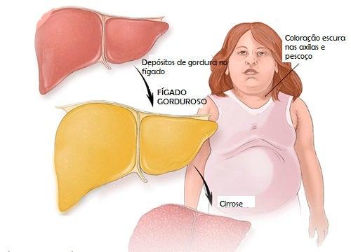 Fígado gorduroso: conheças futas adequadas para tratar este mal