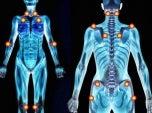 Pontos-de-dor-fibromialgia