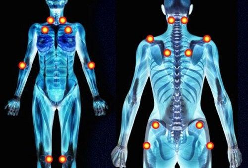 Pontos das dores nos braços e no corpo