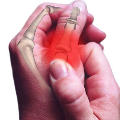 artrose-polegar