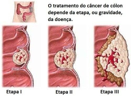 Câncer de cólon: tudo o que precisamos saber