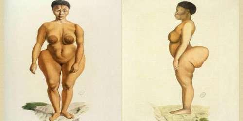 A triste história da mulher que se tornou atração devido aos seus grandes glúteos