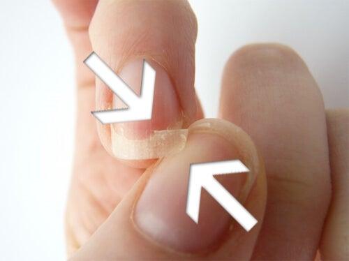 as unhas