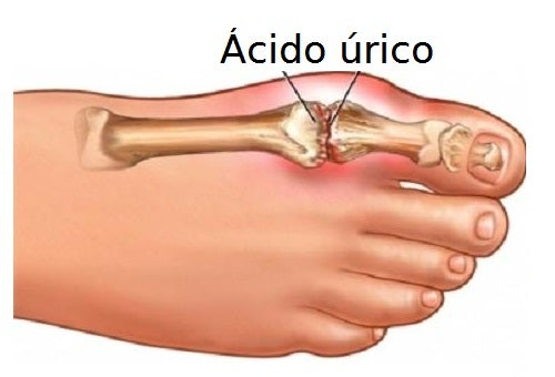 ácido-úrico