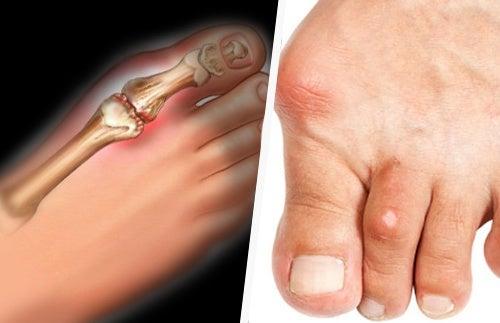 Romã para tratar a artrite