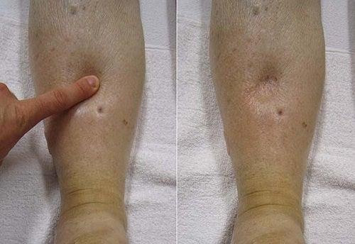 A hidropisia: conheça mais sobre esse problema