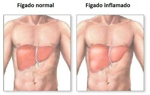 Como saber se seu fígado está inflamado?