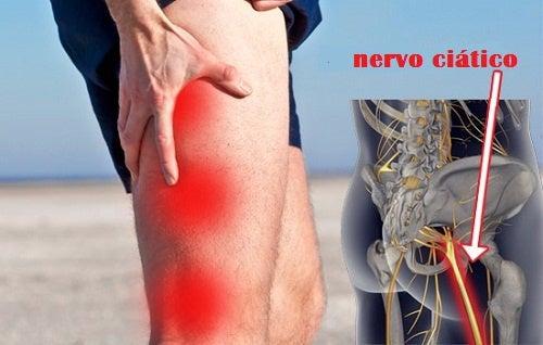 Remédios caseiros e naturais para aliviar a dor ciática