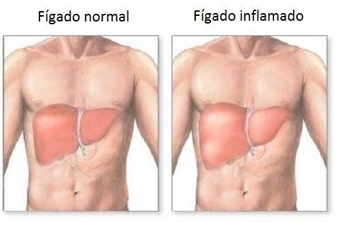 fígado inflamado