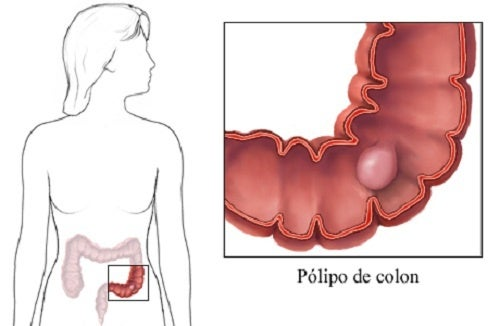 polipos intestinais