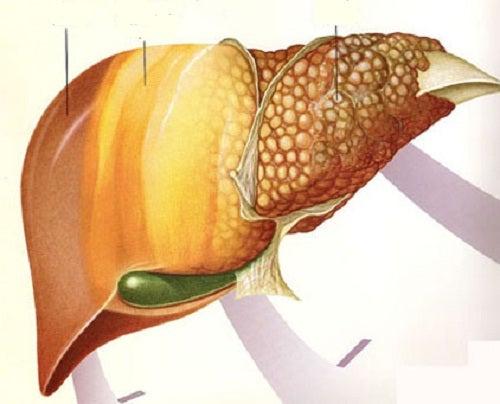 Frutas adequadas para combater o fígado gorduroso