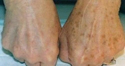 Como atenuar os efeitos de manchas nas mãos?