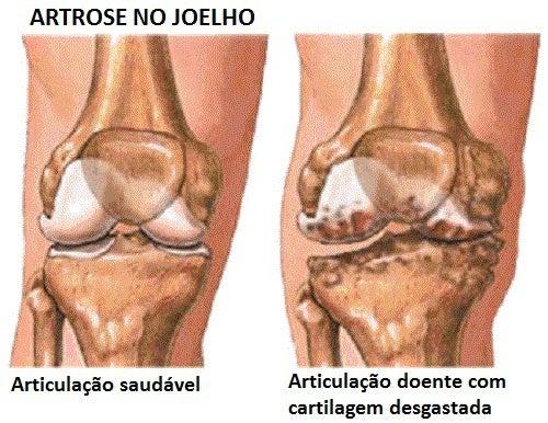 artrose
