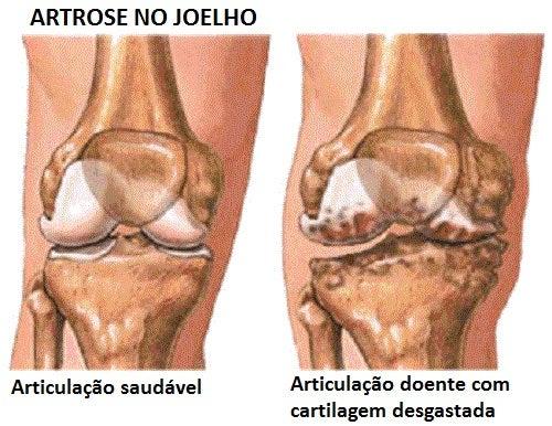 Prevenção e sintomas da artrose