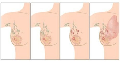 Principais causas do câncer de mama que você deveria conhecer
