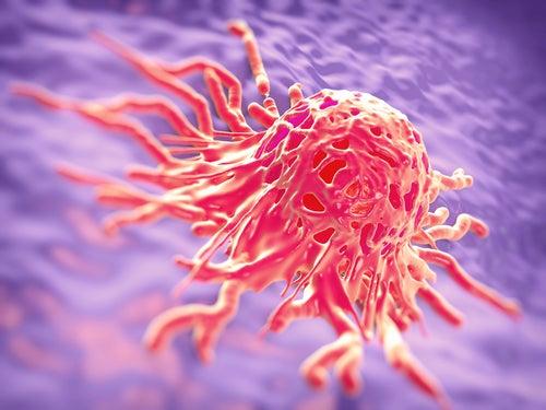 Células do câncer de mama